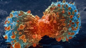 lung_cancer_cell